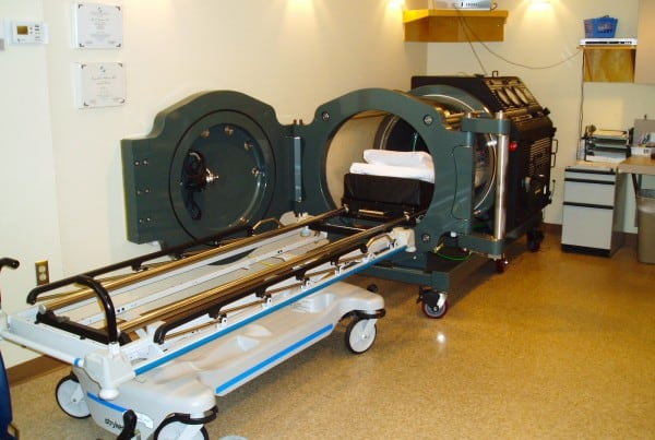 Monoplace Hyperbaric Chamber